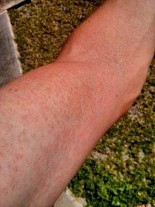 Zika.Virus.Rash.Arm.2014